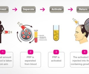 How to use stem cell and PRP therapy for hair growth