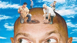 Get rid of baldness with Hair Restoration