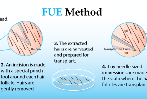 Why to Choose Hair Transplant For Hair Loss Treatment