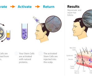 THERAPIES FOR HAIR LOSS TREATMENT– AN EFFECTIVE MEANS TO EARLY SOLUTION
