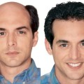 How to Prepare for Hair Transplant Surgery?