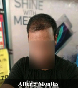 hair transplant 5 months result