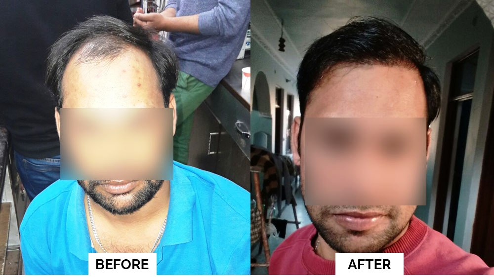 fchtc hair transplant results