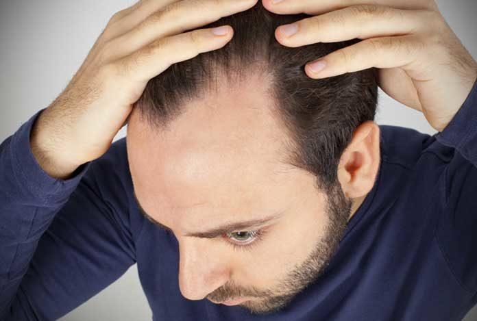 Male-Pattern-Baldness