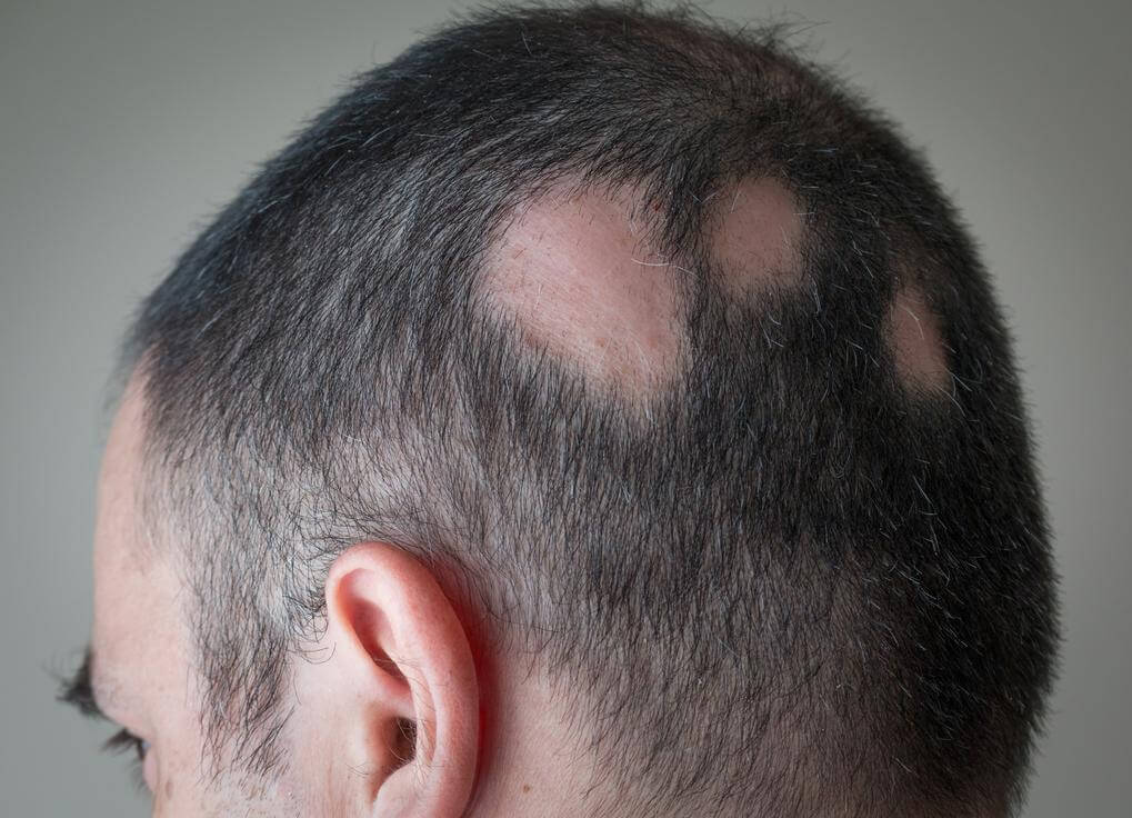 Hair Loss Cause and prevention