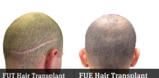 fue-vs-fut-hair-transplant