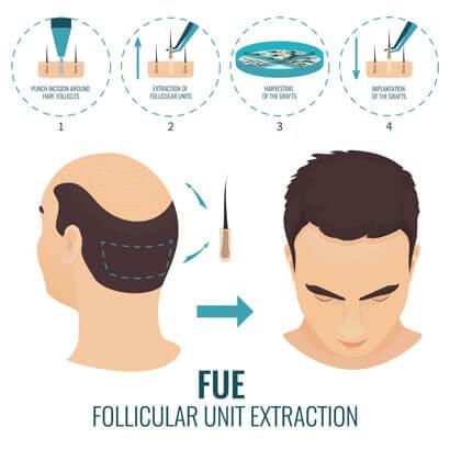 FUE Hair Transplant