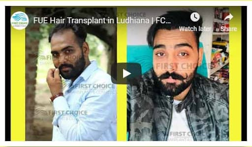 Fue Hair Transplant results video