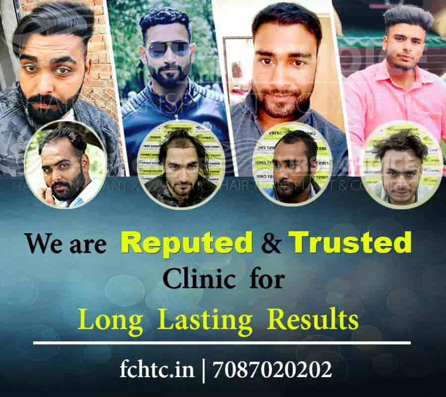 hair transplant in ludhiana cost