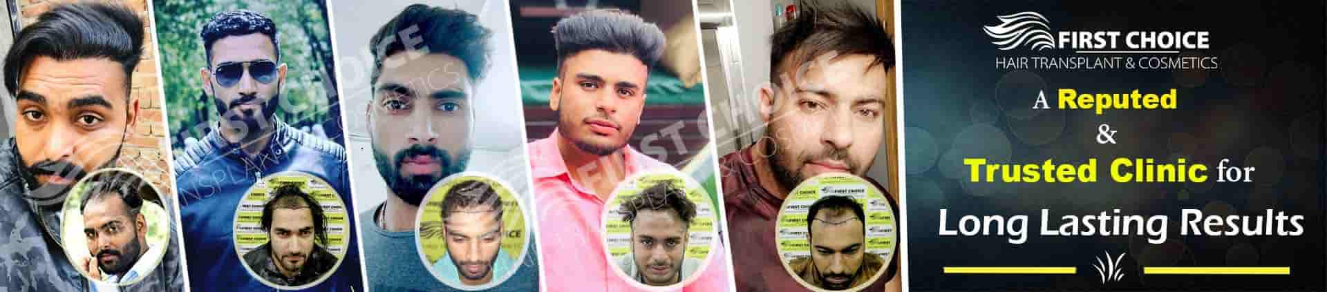 Ludhiana Hair Transplant Offer