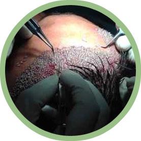 Implantation of Follicles