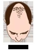 Baldness Level 5