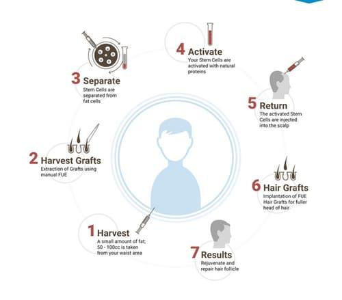 Bio FUE Hair Transplant
