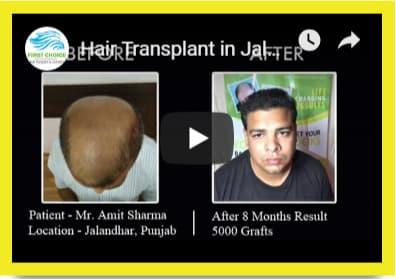 First Choice Hair Transplant & Cosmetics