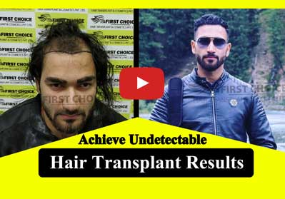 First Choice Hair Transplant & Cosmetics