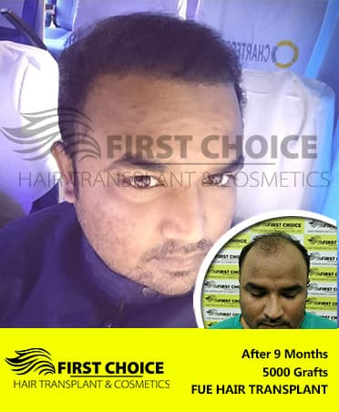 Hair Transplant Patients Results Before After | FCHTC