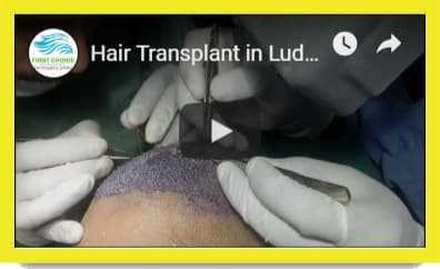 Hair Transplant results in Amritsar